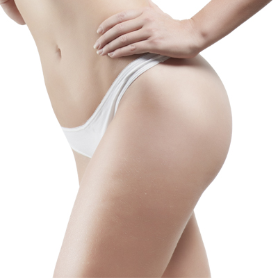 Buttock Liposuction