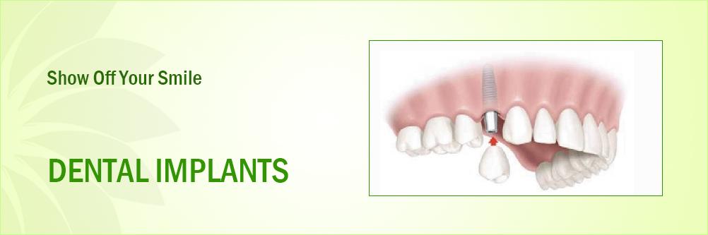 Dental Implants Manufacturers