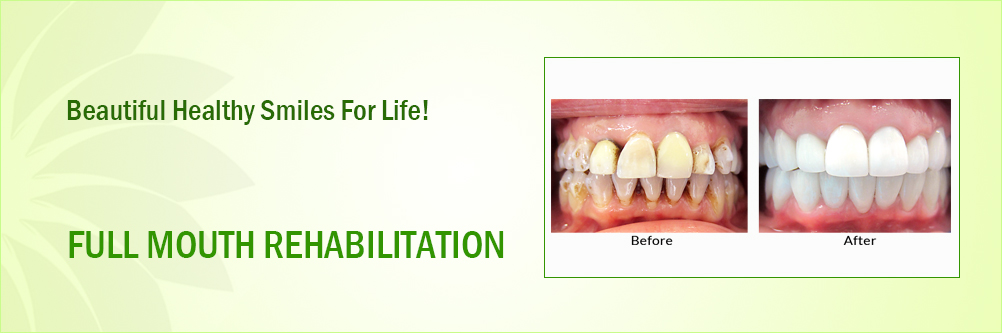 Full mouth rehabilitation Manufacturers