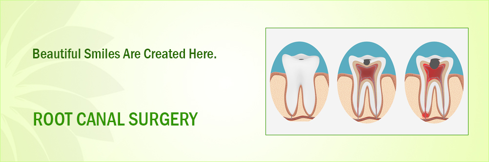 Root Canal Manufacturers